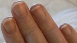 Fingernails_Dec_23Cropped-357x202